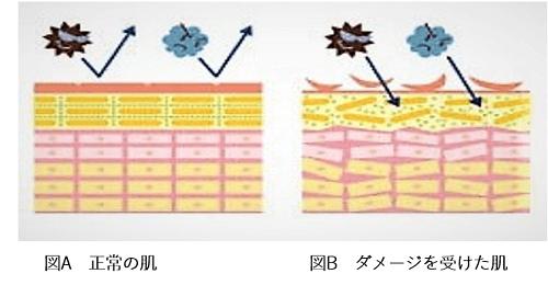 皮膚の断面図